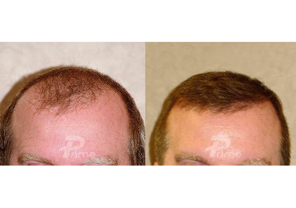 Before-After33