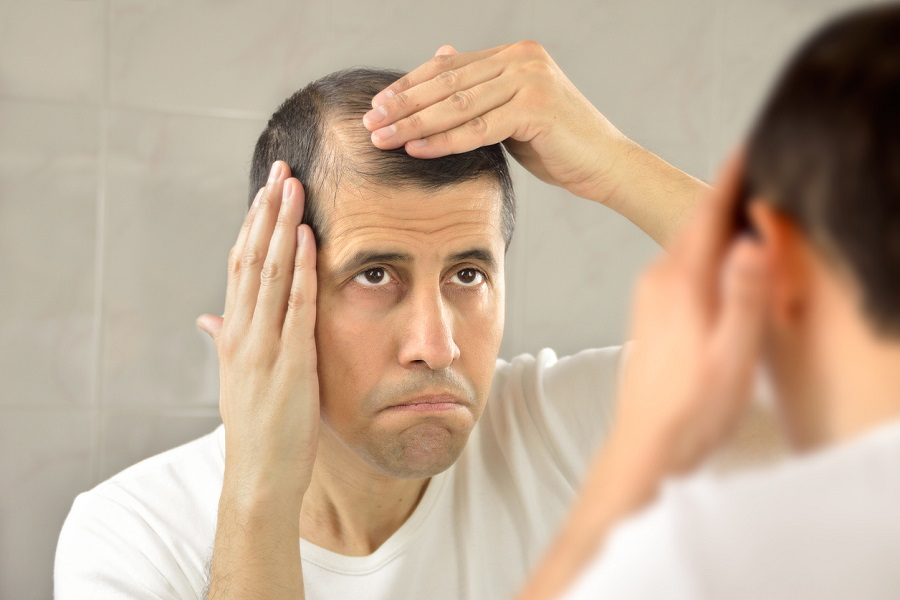 How Young Can You Be To Get Hair Restoration Treatments?