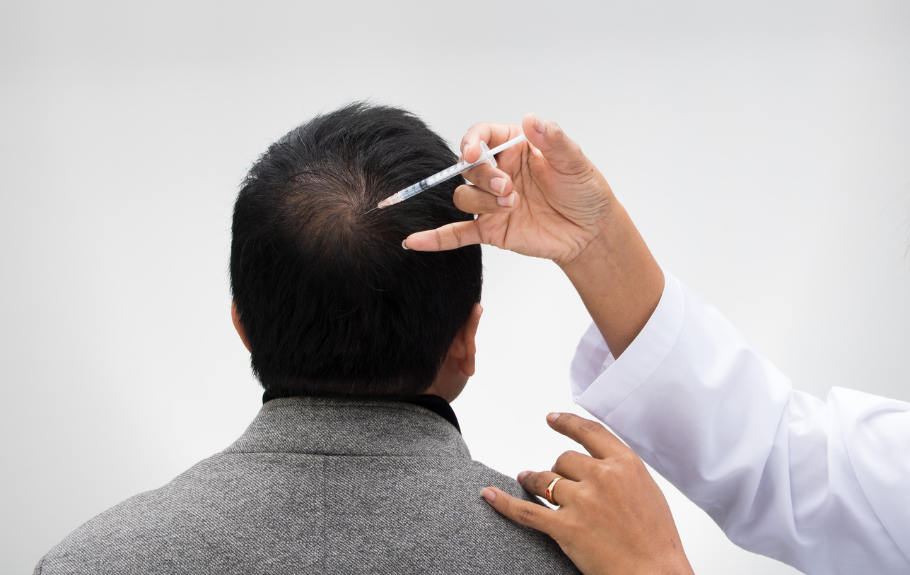 Hair Transplant Calgary