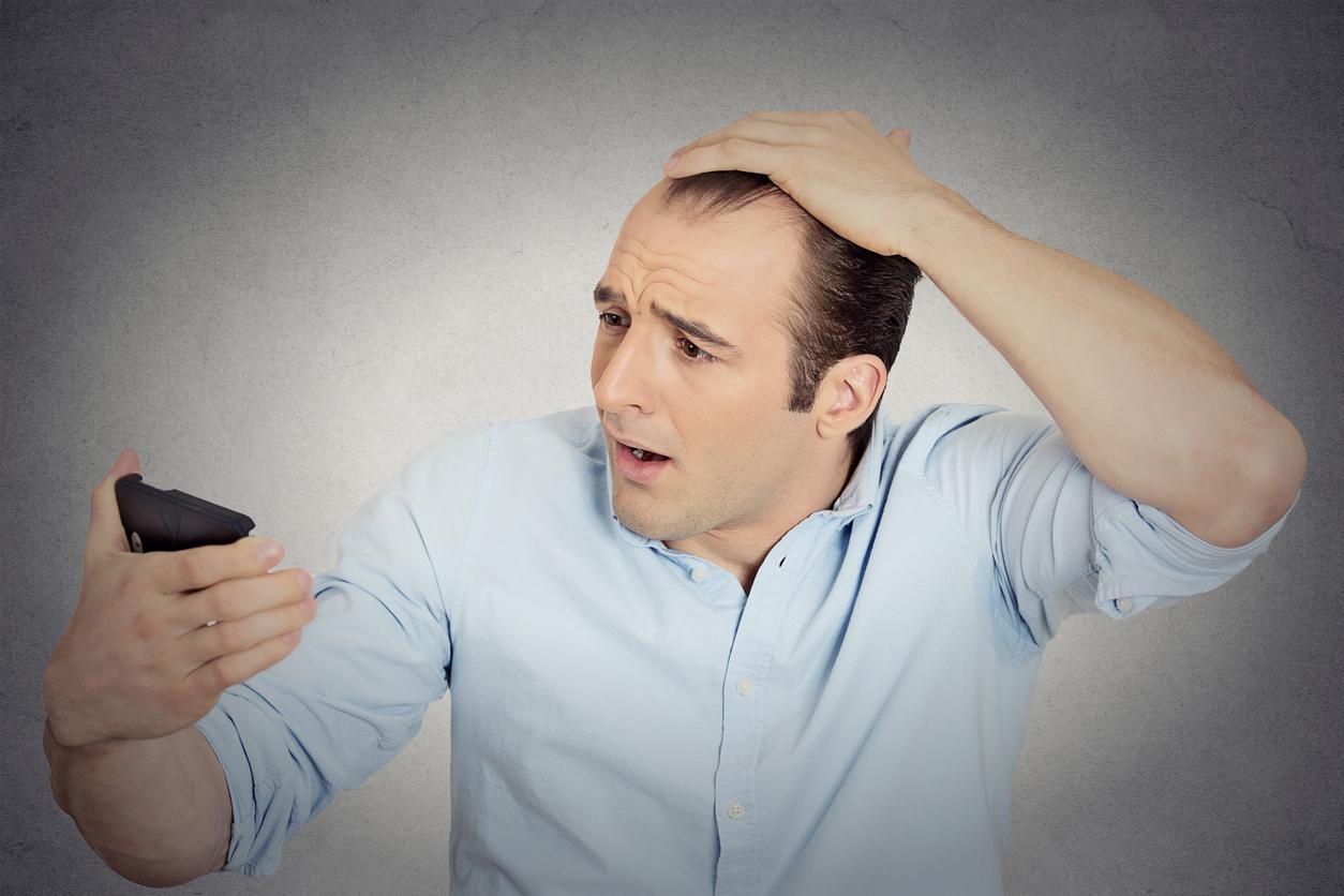 Hair Transplants Calggary
