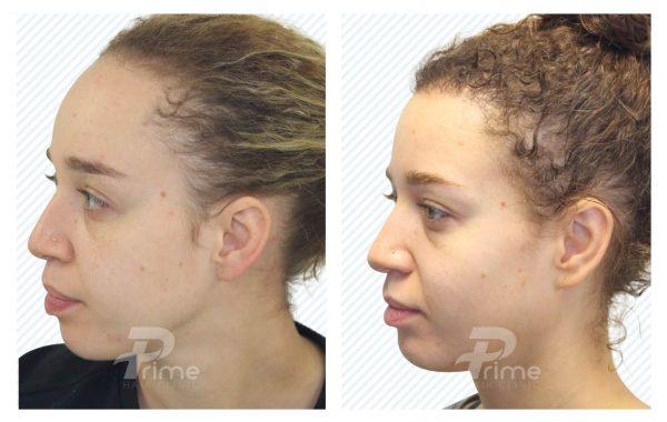 Hairline 2D-1828 grafts