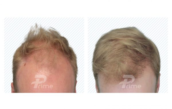 Male Hairlines 5A - 2408 grafts