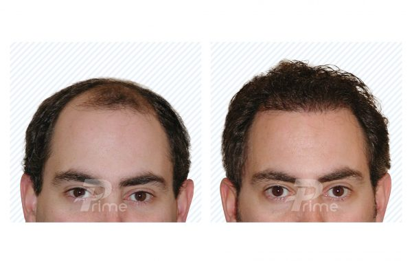 Male Hairlines 7A - 2300 grafts