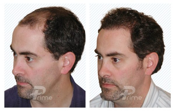 Male-Hairlines-7B---2300-grafts