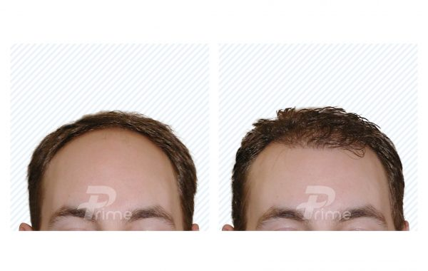 Male Hairlines 8A - 2200 grafts