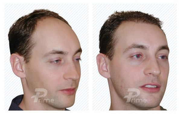 Male-Hairlines-8B---2200-grafts