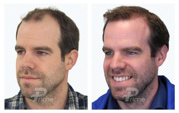 Male-Hairlines-9C---2208-grafts-6-mo-post-op