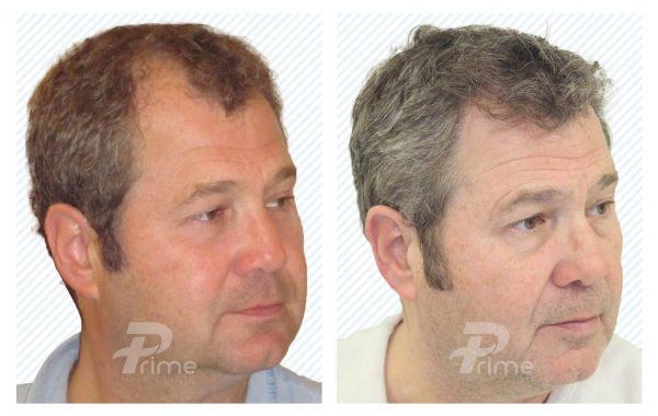 Male-hairline-1E-1700-grafts