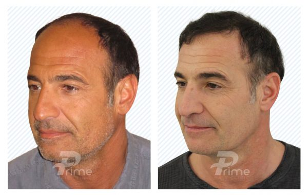 Male-hairline-3B-5000+-grafts