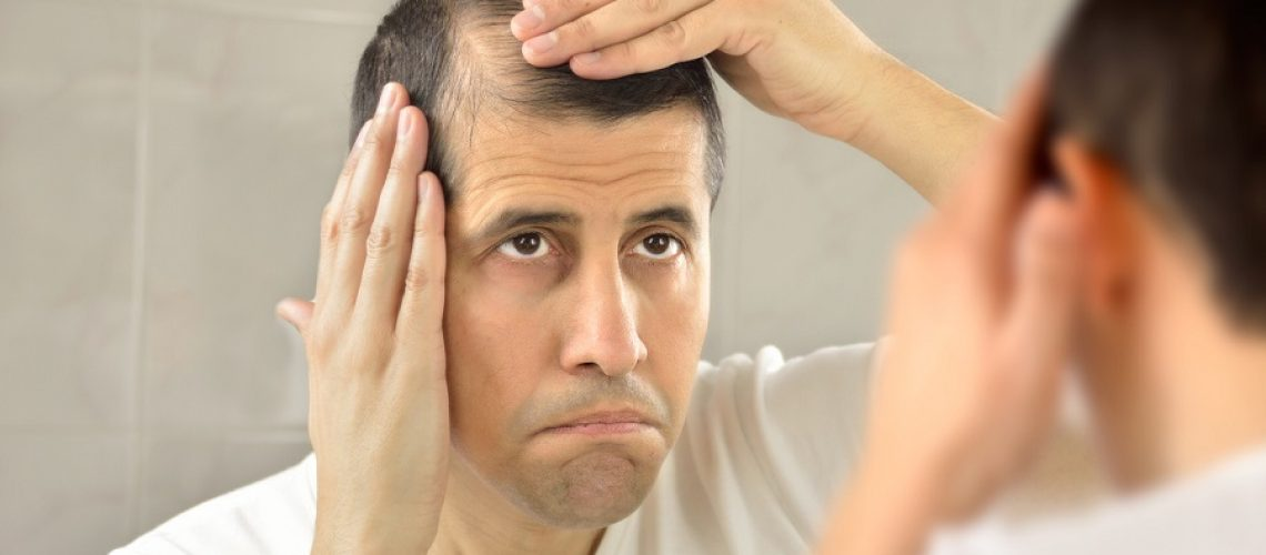 man controls hair loss and unhappy gazing at you in the mirror