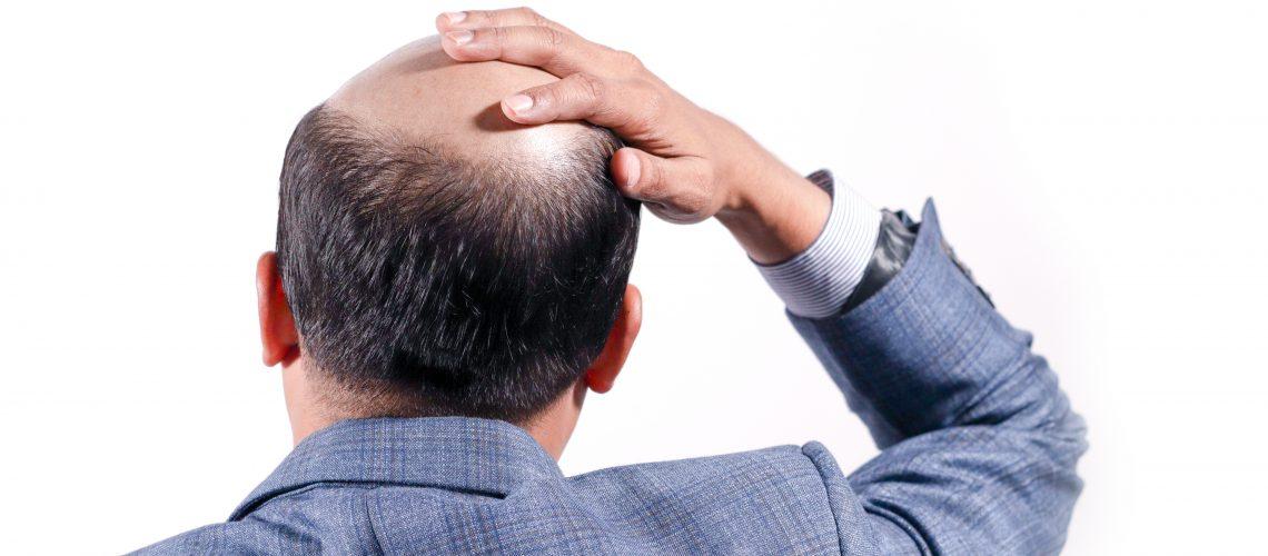 hair restoration Calgary